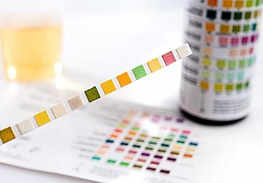 Teste für die Labordiagnostik